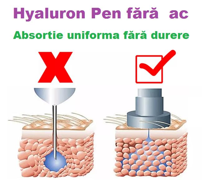 hyaluron-pen-non-invasive-wrinkle-removal-needle-free-img000033200400h400304537897.jpg